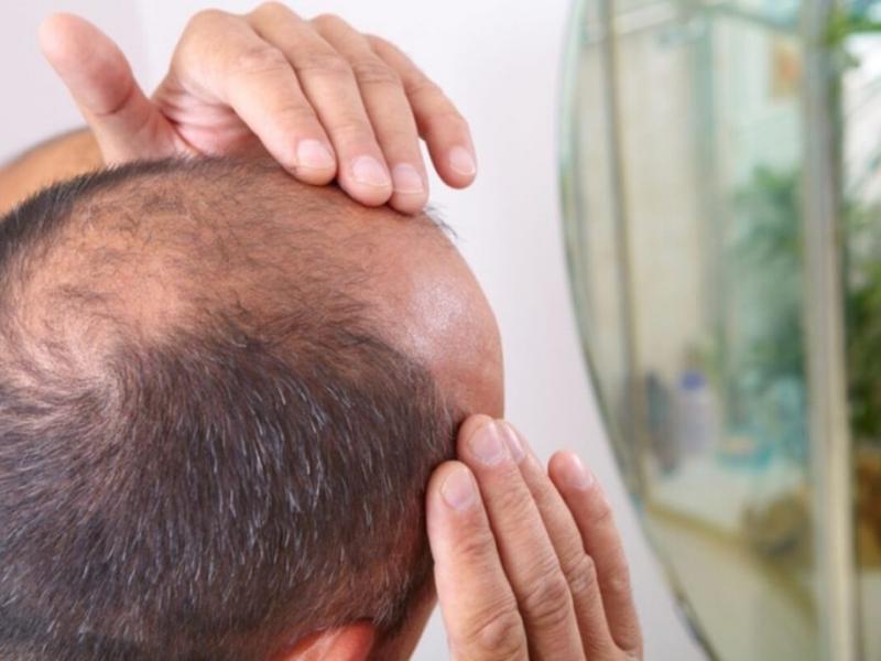 Stresslə saç tökülmənin əlaqəsi